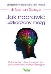 Jak naprawić uszkodzony mózg Od udarów i chronicznego bólu po choroby neurodegeneracyjne - Norman Doidge | mała okładka