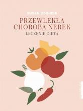 Przewlekła choroba nerek Leczenie dietą - Susan Zogheib | mała okładka